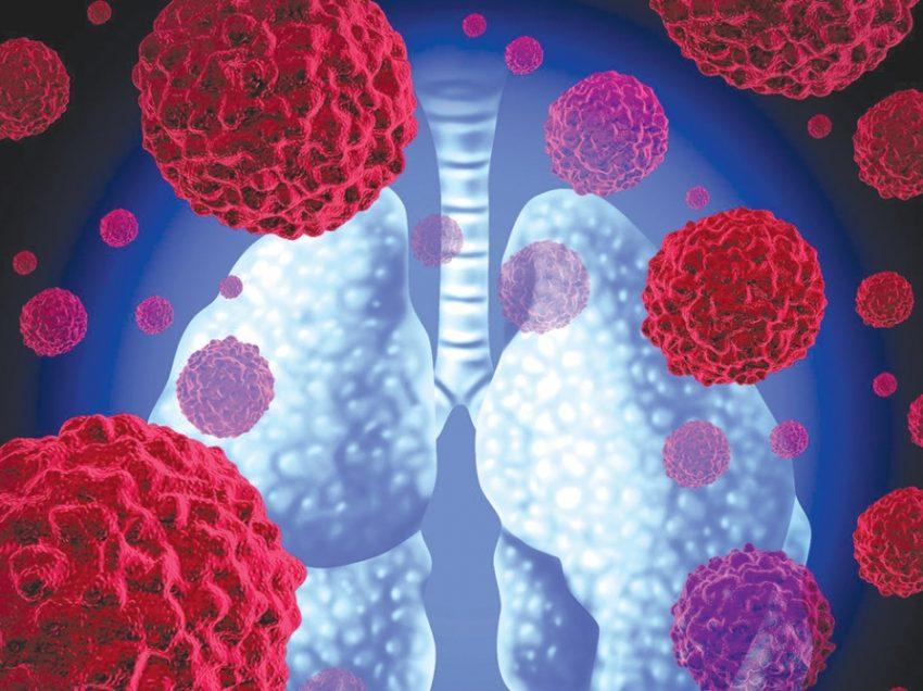 """კიბოს მკურნალობაში ახალი ეპოქა იწყება – მეცნიერები """"ცოცხალი წამლის"""" გამოცდას იწყებენ"""