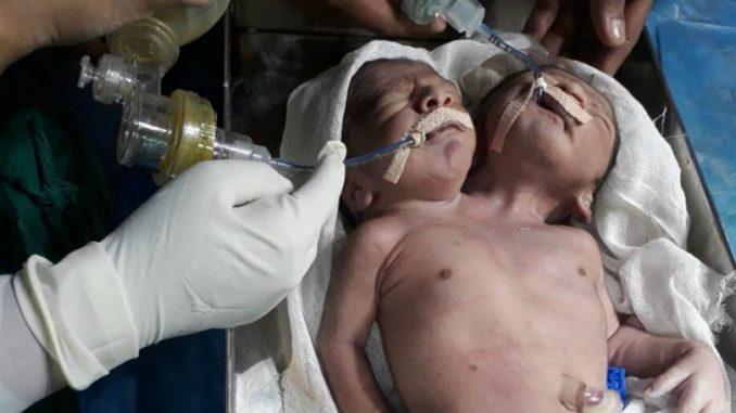 ინდოეთში ორთავიანი ბავშვი დაიბადა, რომელსაც სამი ხელი აქვს (ფოტო)